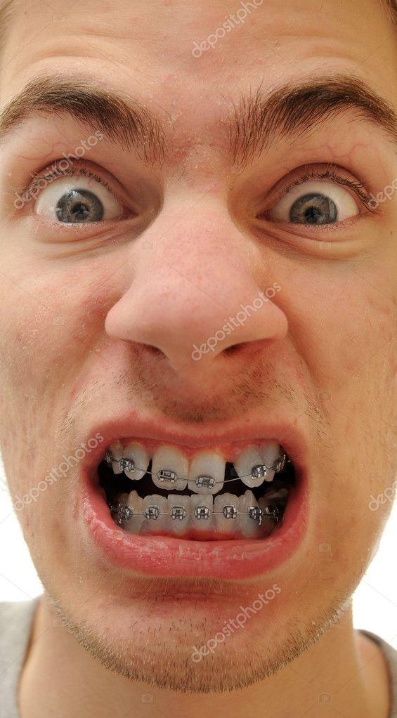 Ответы Стесняюсь своих кривых зубов. У меня два зуба