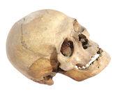 人間の頭蓋骨 — ストック写真