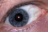 Human Eye Pupil — Stock Photo
