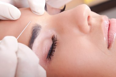 Woman get a botox injection