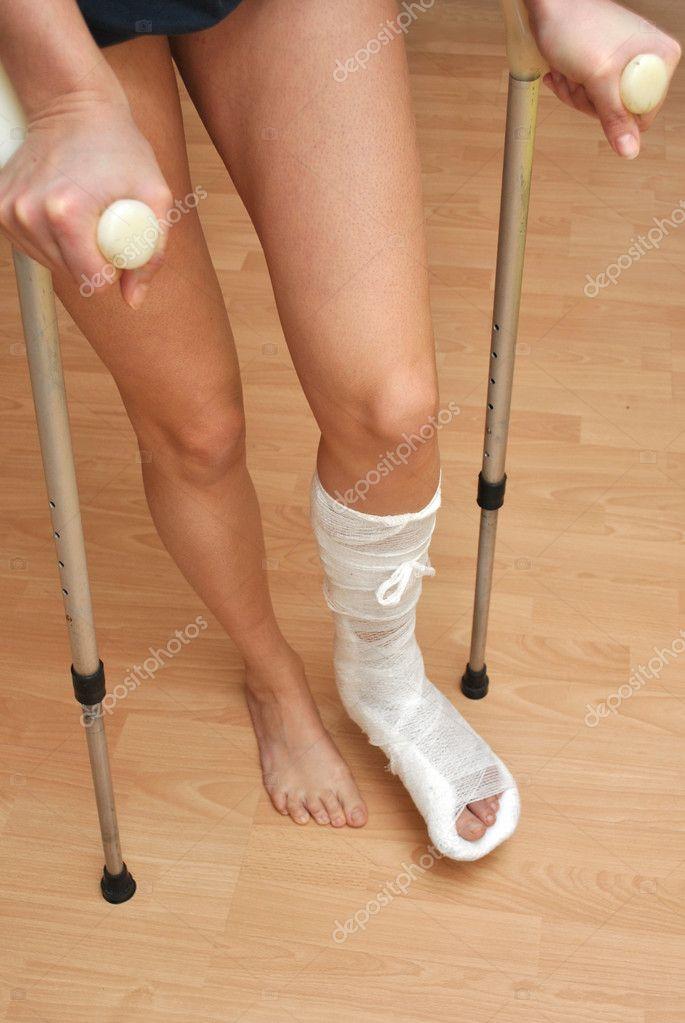 зависимости фирмы перелом левой ноги эзотерика термобелье: походы треккинг