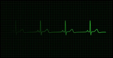 Heartbeat on the monitor vector