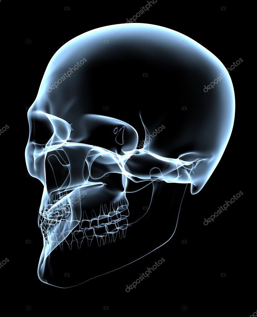 Human Skull - X-Ray Oblique Projection — Stock Photo ... X Ray Views Of Skull