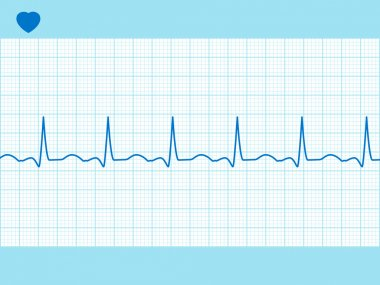 Heart cardiogram fully editable. EPS 8