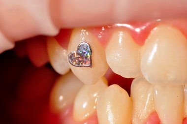 Dental jewellery