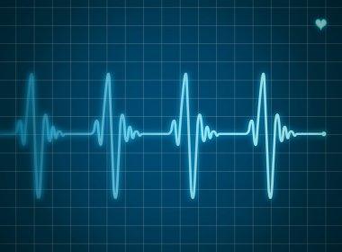 Blue electrocardiogram