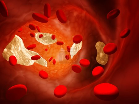 Photo for Atherosclerosis - clogged artery and erythrocytes - Royalty Free Image