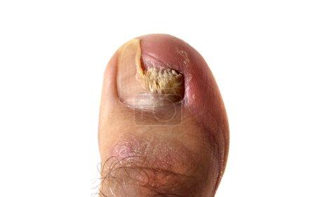 Photo pour Champignon agressif de l'ongle du pied (gros plan) ). - image libre de droit