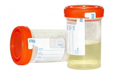 Urinprobe und leere Sammelflasche