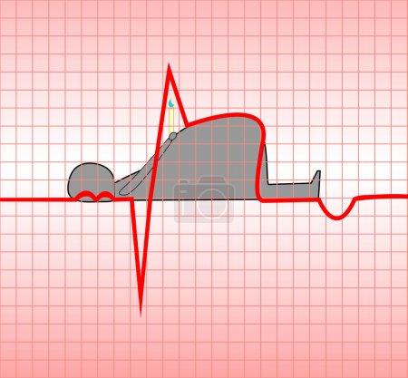ECG, acute, myocardial, myocardium, illustration, ...