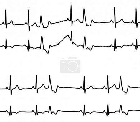 Heart diseases graphs