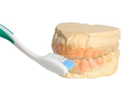 Teeth Cast