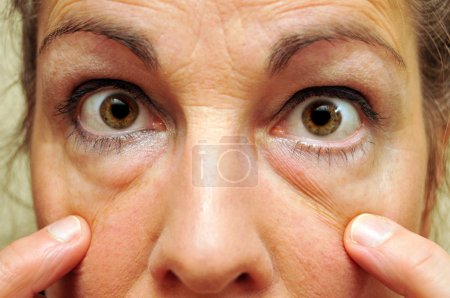 Middle Aged Woman Pointing at her eyes closeup