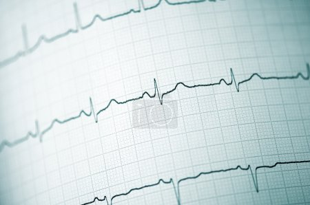 Detail of an electrocardiogram in paper...